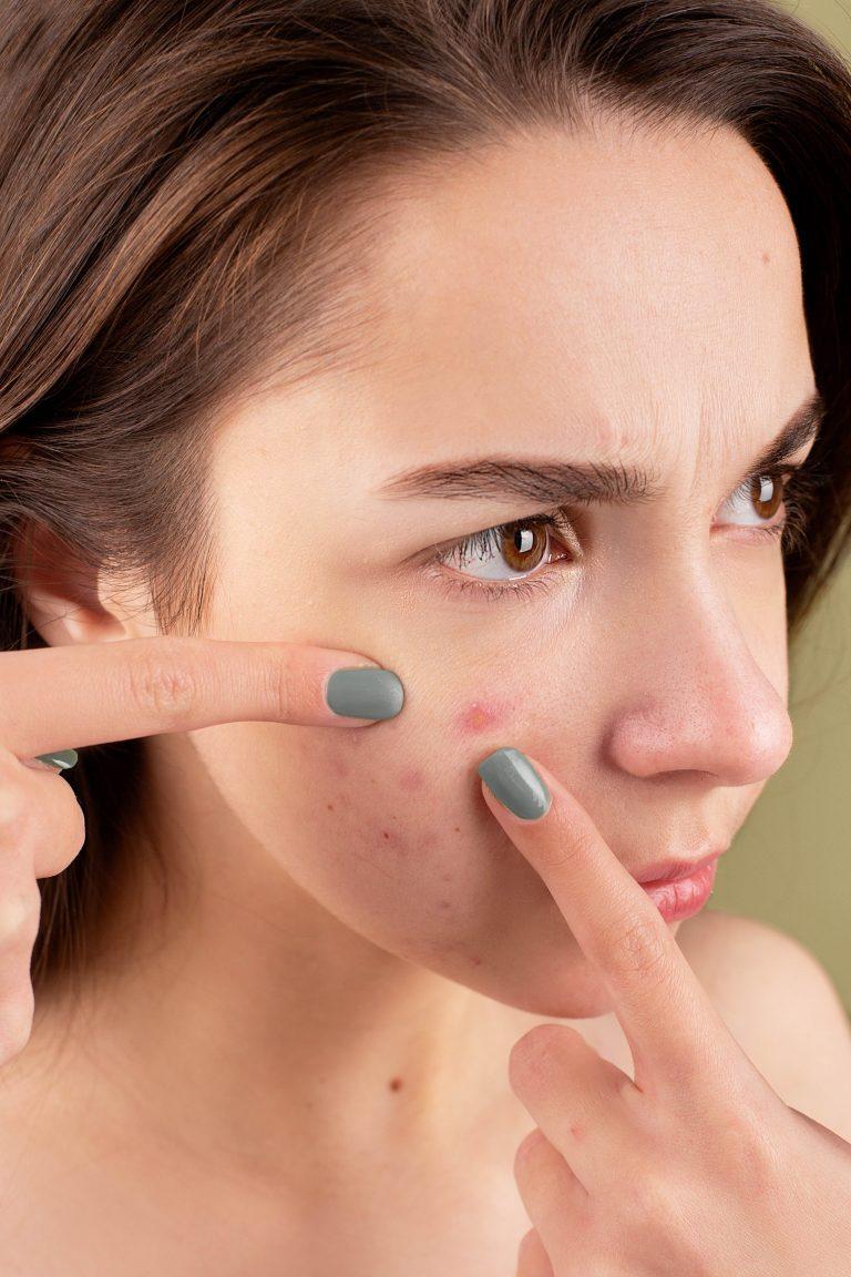 6 Easy Ways to Get Rid of Teenage Acne (Pimples)